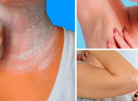 Come eliminare le macchie da collo, ascelle e gomiti in modo naturale