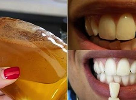 Il metodo naturale per sbiancare i denti in soli 5 minuti