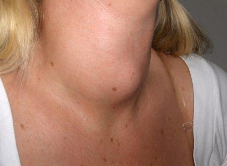 La riteniamo una bevanda sana, ma fa male alla tiroide e causa carenza di vitamina D